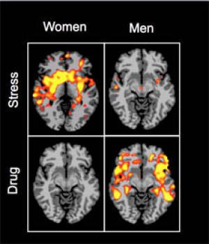 Brain Scans Image