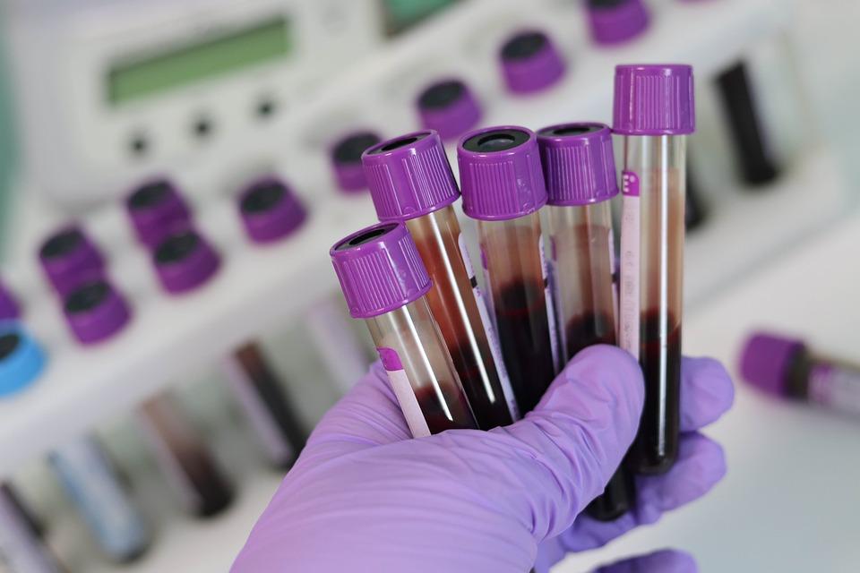 Blood Test Vial Image